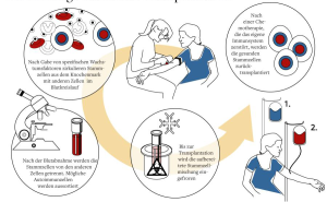 Die Autologe Stammzelltransplantation ampuls Magazin - Ausgabe 1/2012